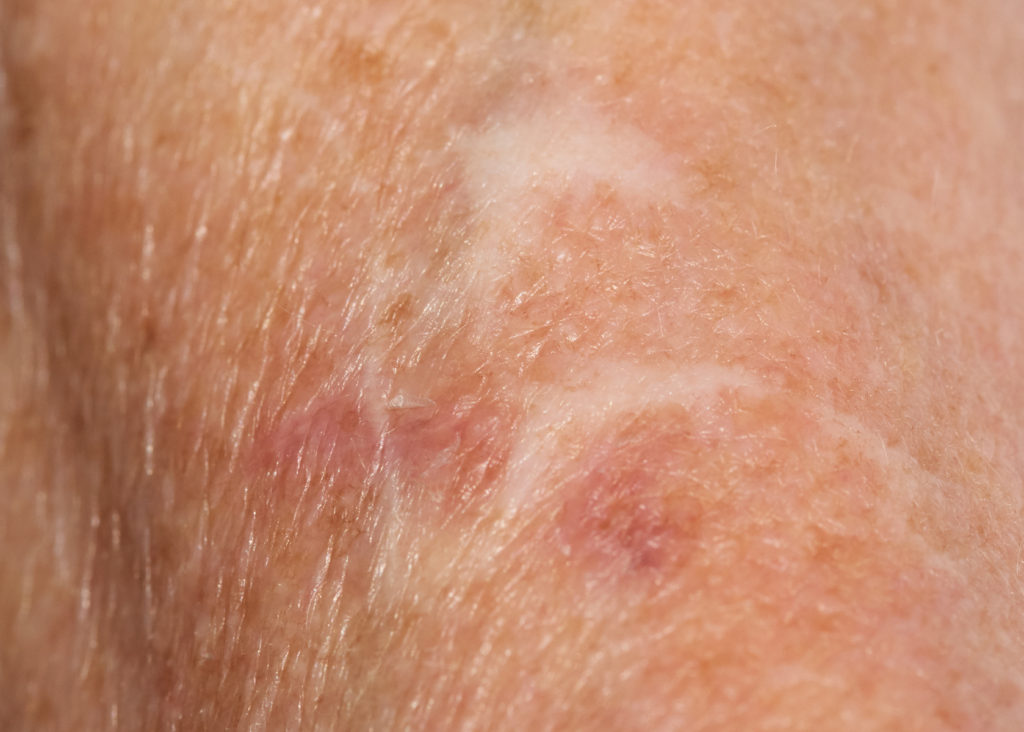 Skin Considerations for COVID-19 Patients: A Home Care Challenge
