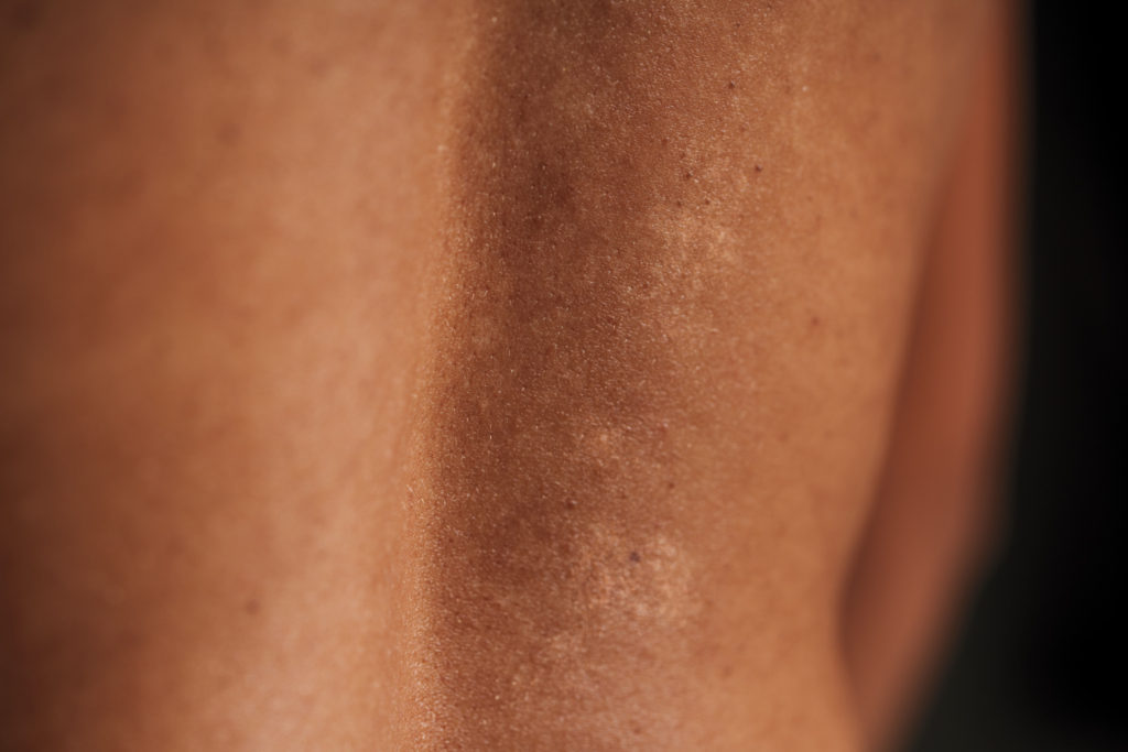 Your Microbiome: What's on Your Skin and Why Does It Matter?
