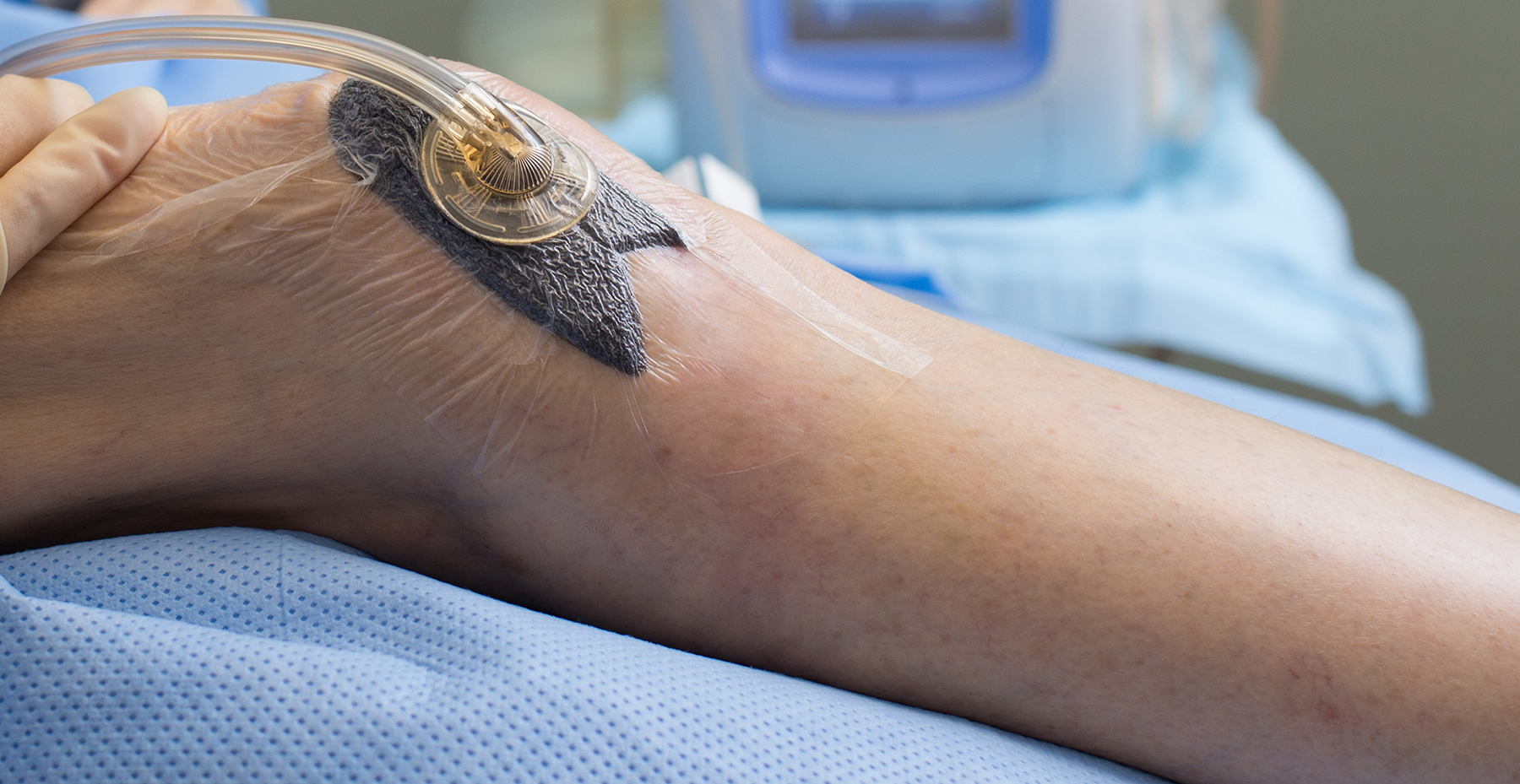 VAC Therapy on patient leg